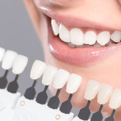 cosmetic dentist in Levittown