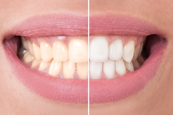 Teeth Whitening affordable dentist in Levittown